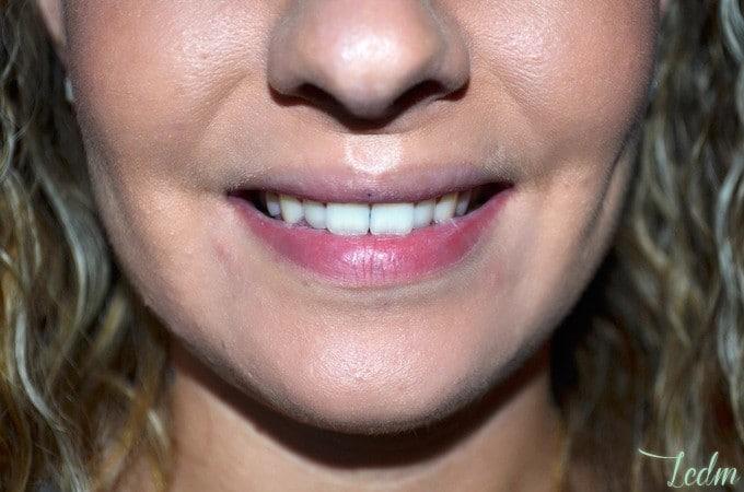 Dentifrice Max White One de Colgate