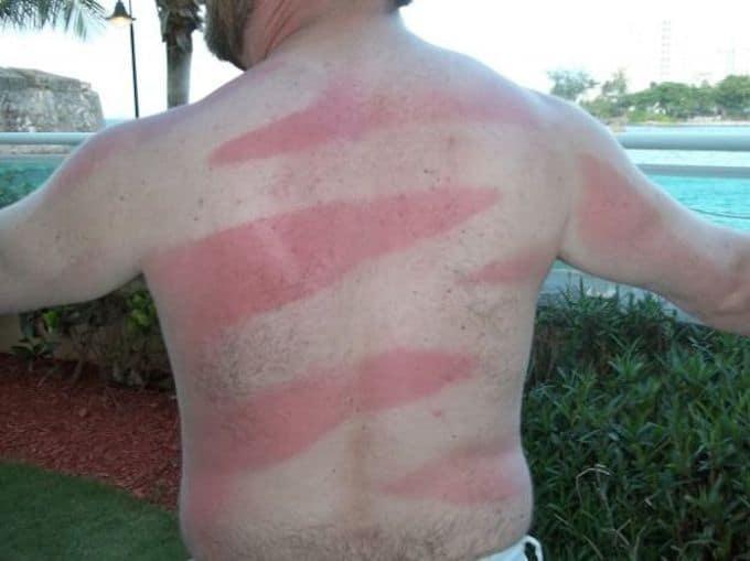 #Sunburnart