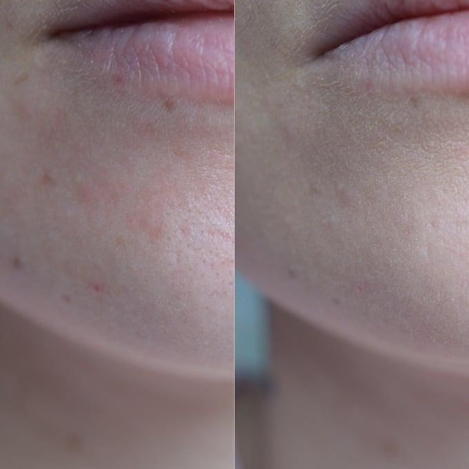 Fond Fond de teint Younique acnéde teint Touch Mineral acné