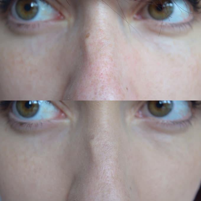 La raison de lapparition les taches de pigment sur le nez