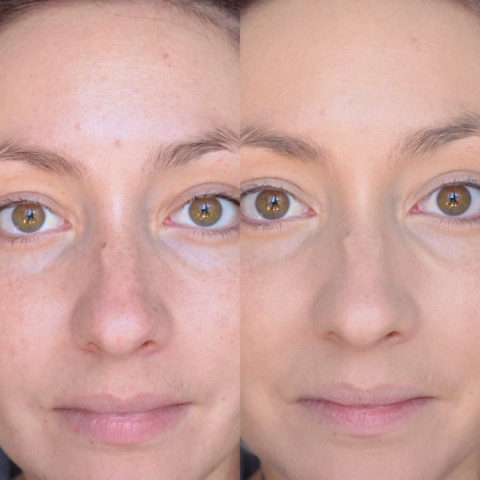 Dermablend: photo